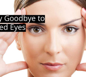 Natural Upper Eyelid Lift